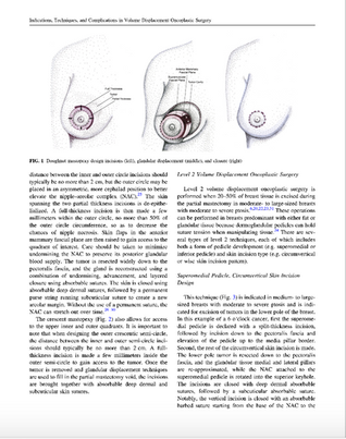 Annals of Surgical Oncology 2