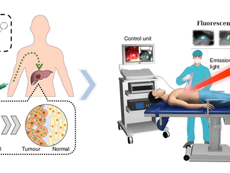 Oncology: infrared light could help surgeons see more clearly the tumors during operations