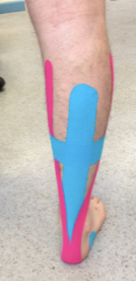 taping an injury