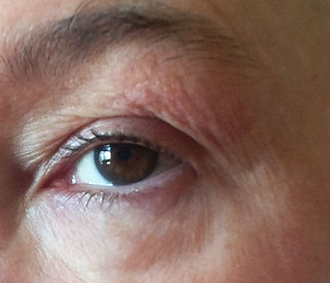 before and after, instant lift, eye lift, anti-wrinkle, looking younger, botox alternative