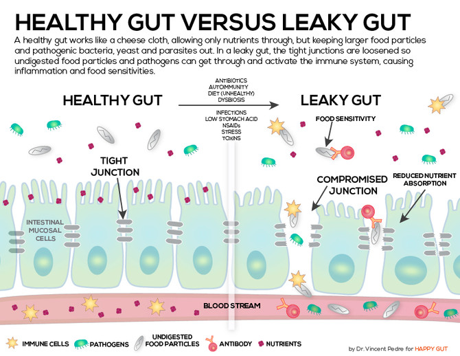 Leaky Gut- The Basics Revisited & The Science To Support It