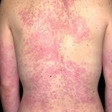 Dermatitis back.jpg
