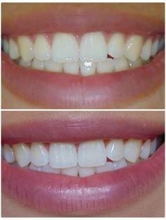 8e22f1f0e418b59eee99bebc65c1ccab--teeth-