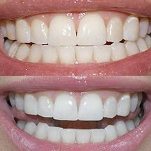 dd0d3217b2ae17b23640a7d8e00f30f0--dental