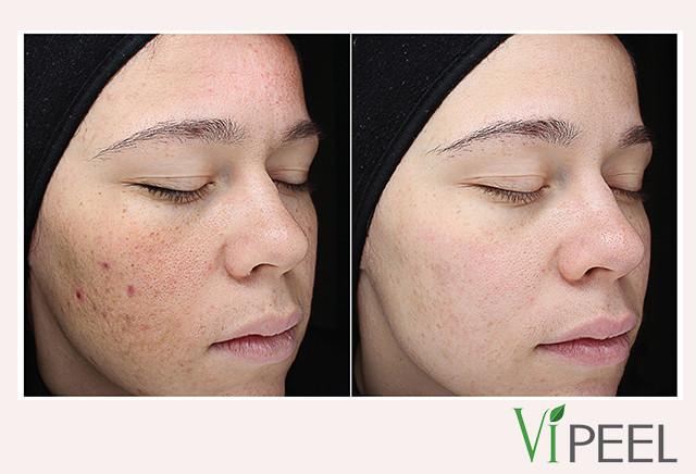 VI-Peel-Precision-Plus-before-after.jpg