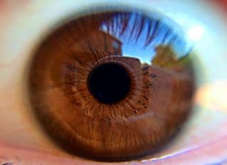 Alzheimer's Disease, Dementia and the Eye
