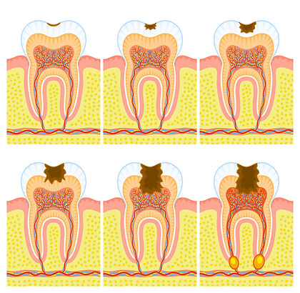 Restoration and Root Canal Treatment.jpg