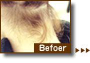 hair_bef.jpg