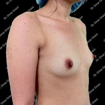 mamoplastia de aumento A2.jpg