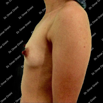 mamoplastia de aumento A4.jpg