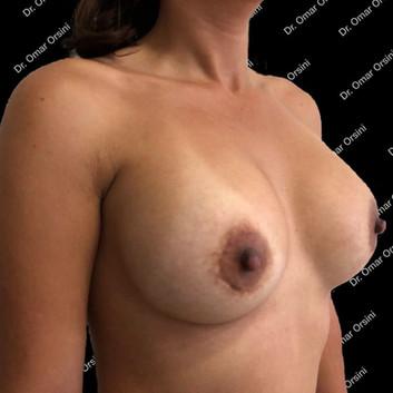 mamoplastia de aumento A7.jpg
