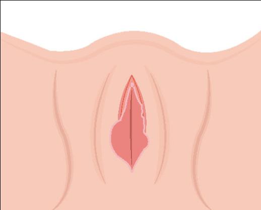 ninfoplastia Imagen 1.png