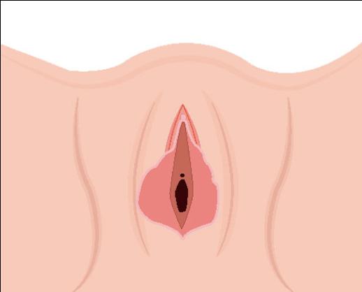 ninfoplastia Imagen 2.png