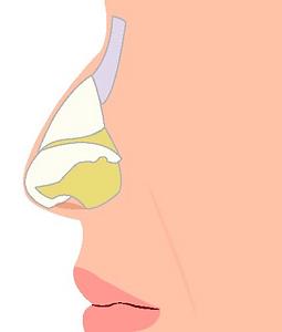 rinoplastia Imagen 1.png