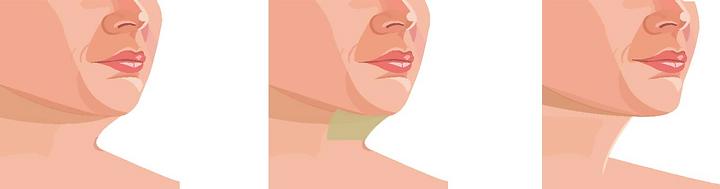 liposuccion imagen 4.png