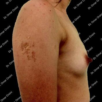 mamoplastia de aumento A5.jpg