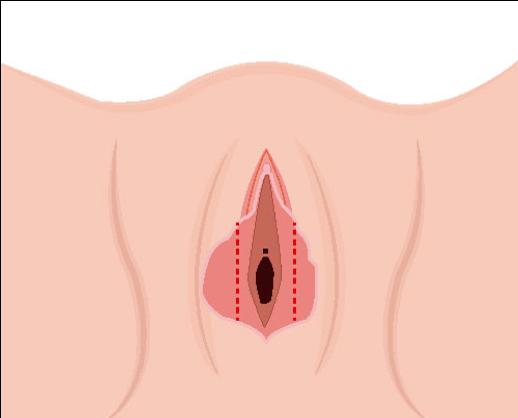 ninfoplastia Imagen 3.png