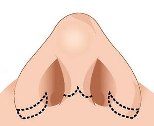 rinoplastia Imagen 3.png