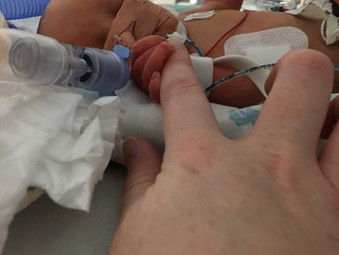 PPROM at 21 weeks - my story of hope by Kerry