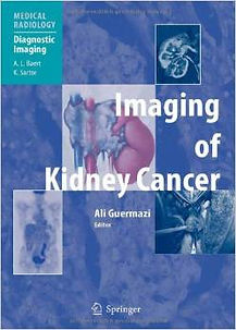 imaging of kidney cancer.jpeg
