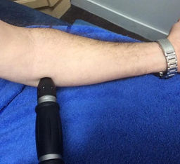 tennis elbow, golfers elbow, shockwave