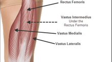 Thigh Strains (Quadriceps Injuries/ Rectus Femoris)