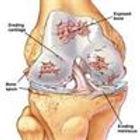 knee osteoarthritis, arthritis, knee injury