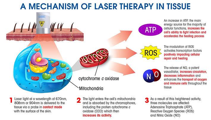 laser_diagram.jpg