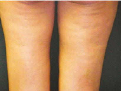 cellulite prima rgb.jpg