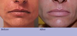 Wrinkle Filler - Lips & Creases