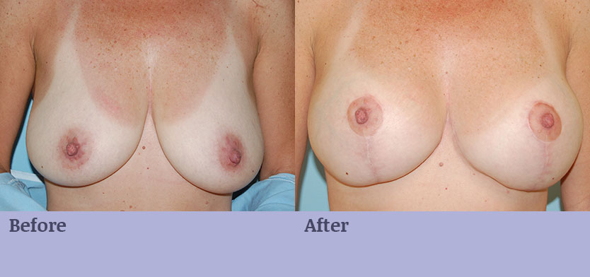 Breast Enlargement with Breast Lift