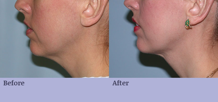 Chin Surgery with Implant