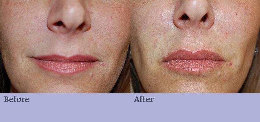 Wrinkle Filler - Lips