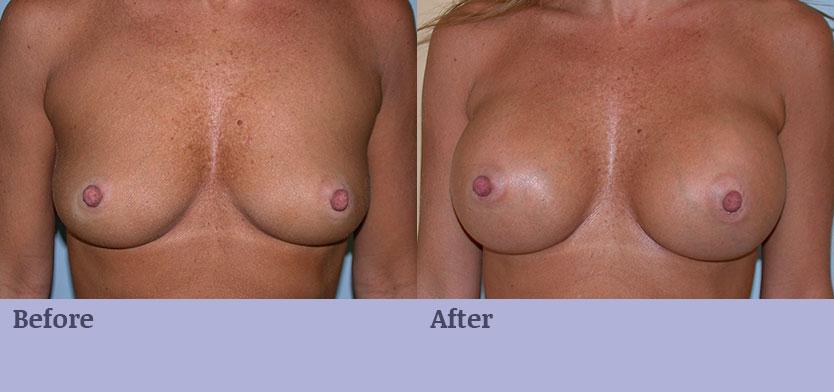 Breast Enlargement