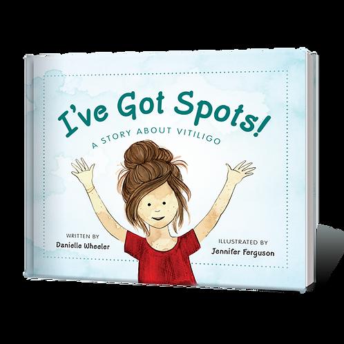 I've Got Spots!