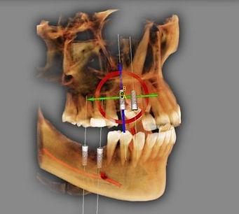 intervento di implantologia simulato al computer techica mininvasiva