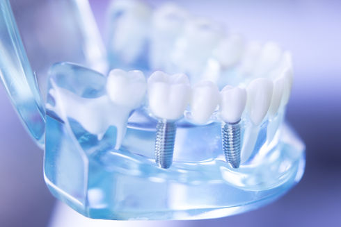 Dentsts dental prosthetic teeth, gums, r
