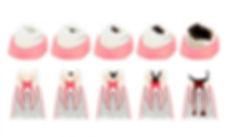 denti-cariati-conseguenze-768x459-min.jp