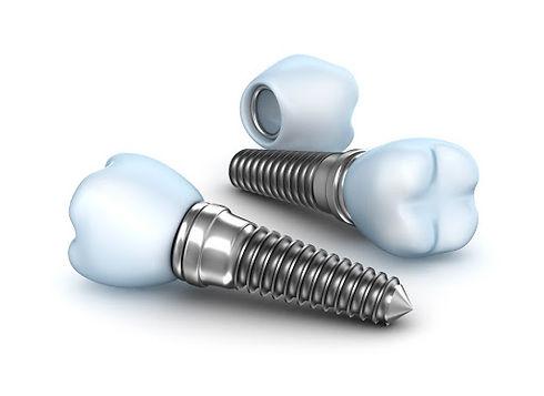 tipologie di impianti dentali.jpg