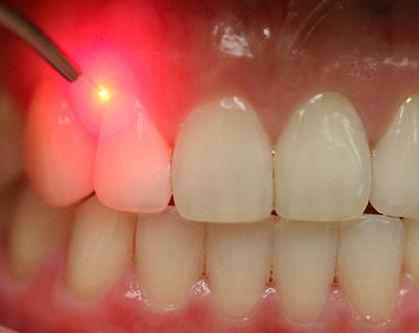 trattamento laser della piorrea