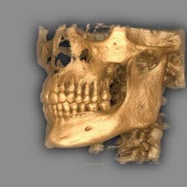 Dentalscan tiny.jpg