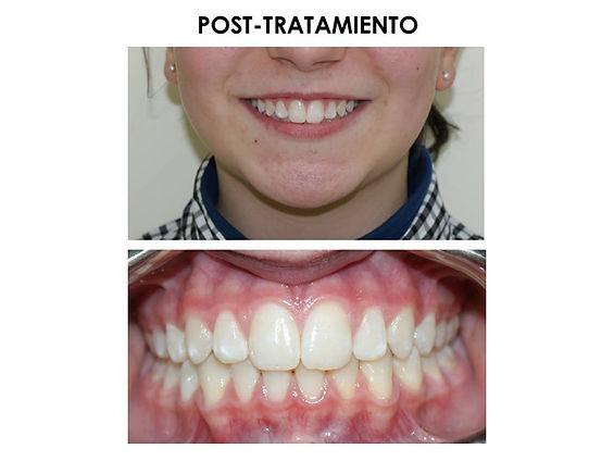 Ortodoncia_Biológica.jpg