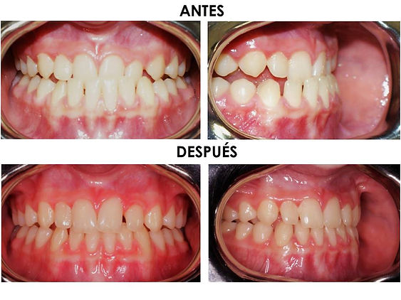 Álvaro_M.jpg