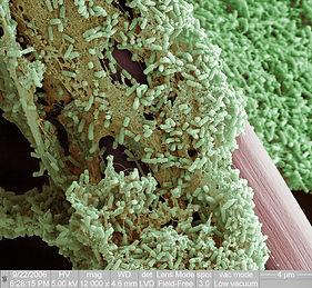 biofilm image 2.jpg