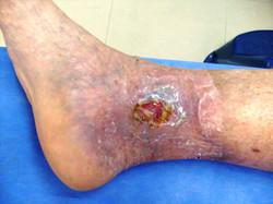 Úlcera Antes