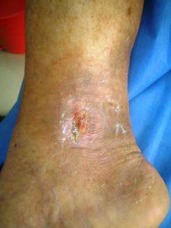 Úlcera Día 35