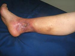 Úlcera Día 5