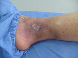 Úlcera Día 16