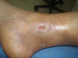 Úlcera Día 45