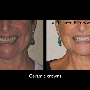 Ceramic Crowns: Miami Beach Cosmetic Dentist Jared Plitt
